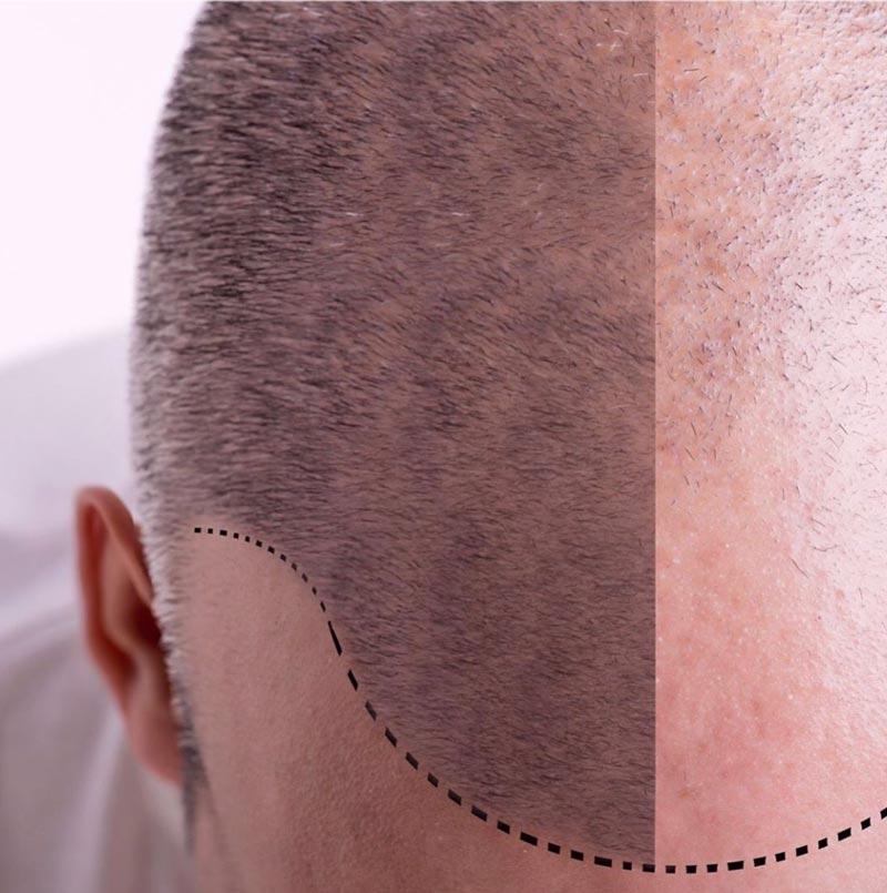 médecine du cheveu